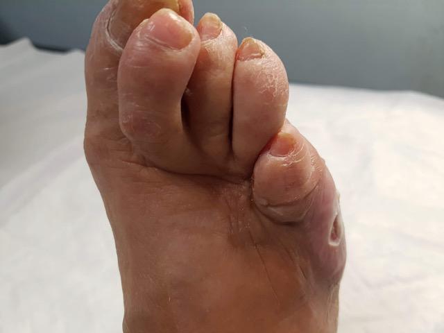 El Colegio Oficial de Podólogos de CLM conciencia sobre la importancia de la prevención del pie diabético