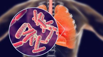 Confirmado un caso de tuberculosis en un colegio de CLM