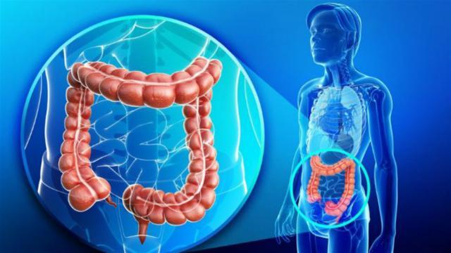 La importancia de la detección precoz de cáncer de colon y recto