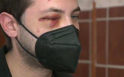 Miguel, el joven agredido en Velada: