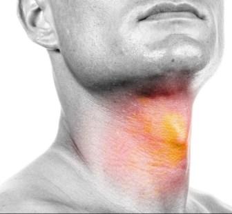 Casi la mitad de los tumores de orofaringe pueden estar relacionados con el sexo oral