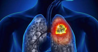 Un nuevo fármaco es eficaz contra un tipo de cáncer de pulmón