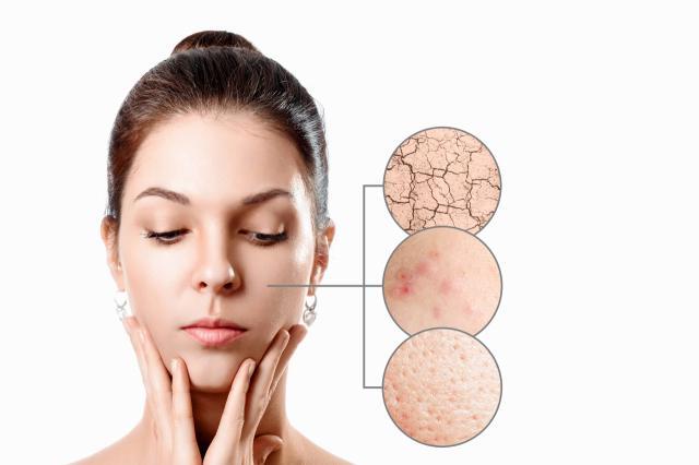 SALUD Y BELLEZA   Espinillas y arrugas: los riesgos de una mala rutina al desmaquillarse