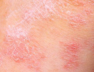 La dermatitis atópica se debe prevenir desde el nacimiento en niños con riesgo