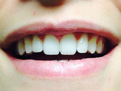 Uno de cada cuatro toledanos no sonríe para ocultar su dentadura