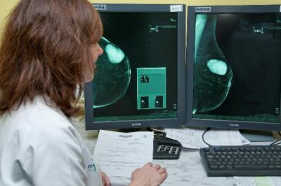 El 73% de las mujeres citadas por SESCAM en talavera se hicieron las pruebas de detección de cáncer de mama