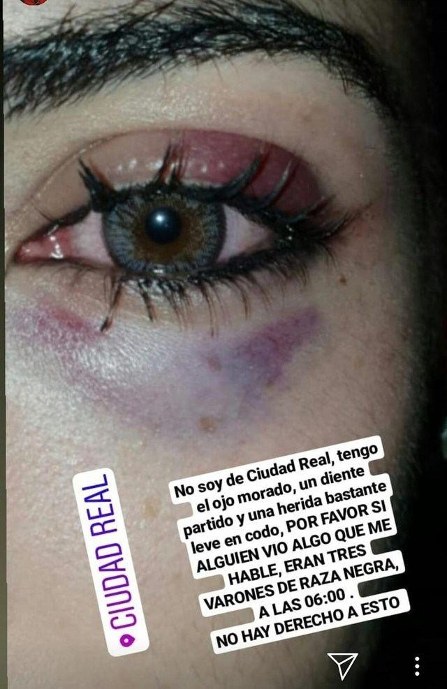 Policía Local auxilia y lleva al hospital a una chica agredida por otro joven que intentó besarla