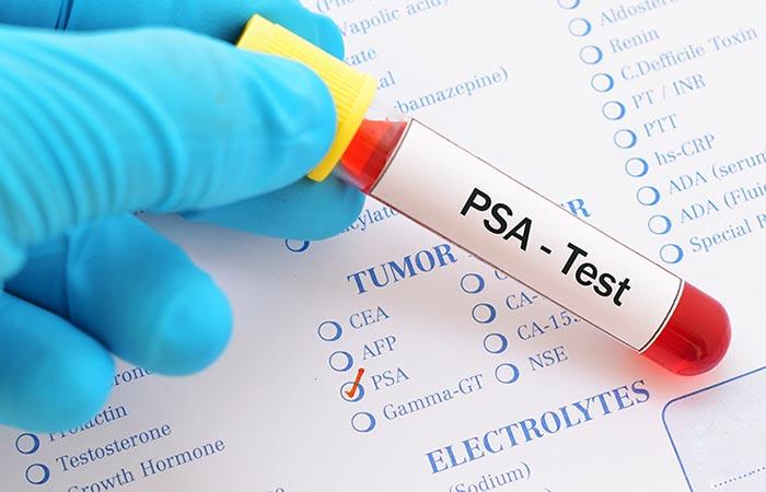 pruebas que se deben realizar para el cáncer de próstata