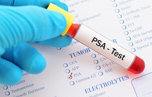 La importancia de la detección precoz del cáncer de próstata