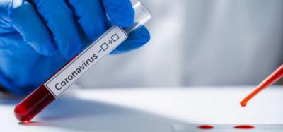 ÚLTIMA HORA | Castilla-La Mancha puede realizar hasta 6.000 test PCR diarios en la Fase 1