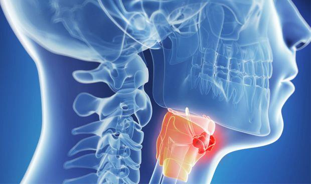 Advierten sobre el incremento de tumores de cabeza y cuello