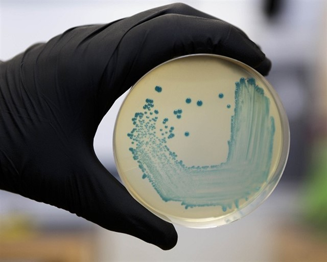 Food Safety Pathogen Listeria Monocytogenes Isolated On Agar From A Food Sample.RECTORADO UNIVERSIDAD COMPLUTENSE