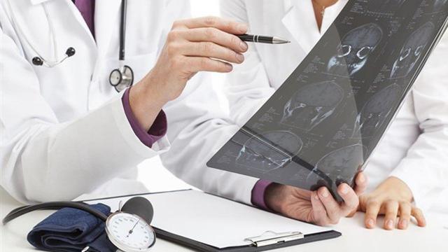 La desinformación pone en riesgo a los pacientes de ictus