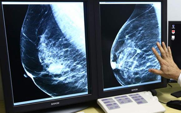 El nuevo mamógrafo con tomosíntesis del Hospital comenzará a instalarse el 4 de mayo