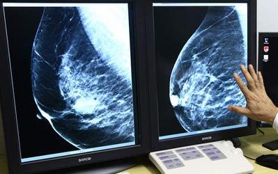 El mamógrafo digital donado por Amancio Ortega entrará en funcionamiento en el Hospital de Talavera en menos de 2 semanas