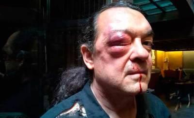 La Policía instruye diligencias tras la agresión a Barredo