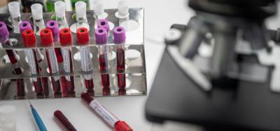 COVID-19 | Resultados prometedores en la primera vacuna probada en humanos